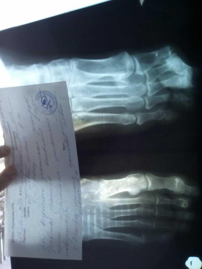 Рентген стопы !